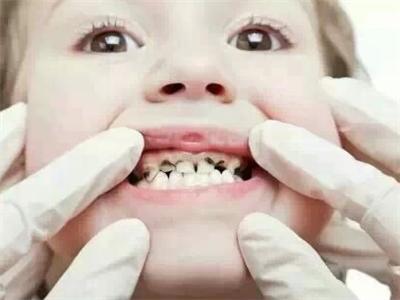 孩子牙齿长黑斑怎么办?家长不能太马虎