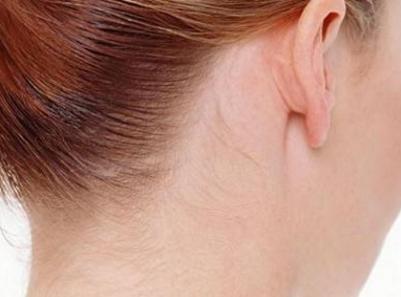 风疹的症状有哪些 风疹常见的五个表现