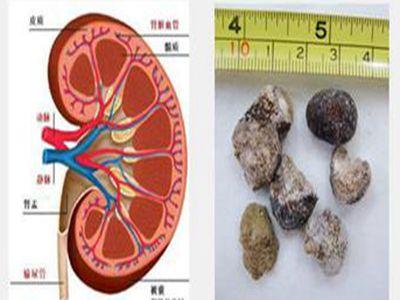 肾功能检查什么疾病