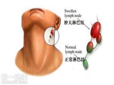 淋巴结肿大怎么回事 分析淋巴结肿大的原因及治疗