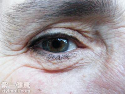 女人如何去除眼角纹?