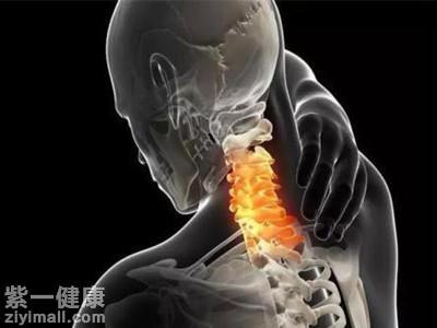 睡觉手麻是怎么回事 可以考虑是神经根型颈椎
