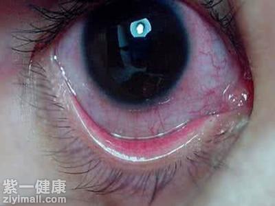 小孩子眼睛有红血丝_【专题】女人如何消除红血丝_10_健康经验