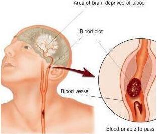 脑血栓的临床表现