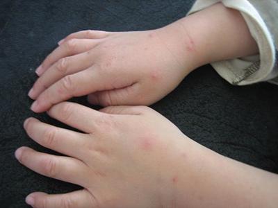 手足 症状 大人 口 病